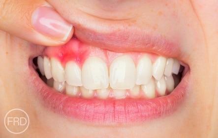 dental bonding for receding gums