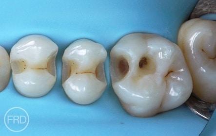 paediatric restorative dentistry