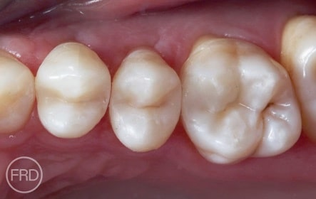 cosmetic and restorative dentistry
