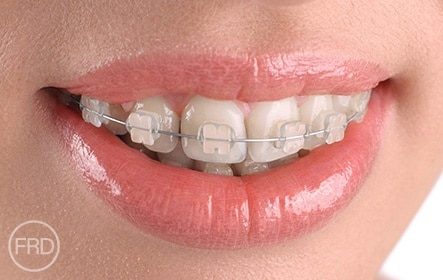 straighter teeth without braces