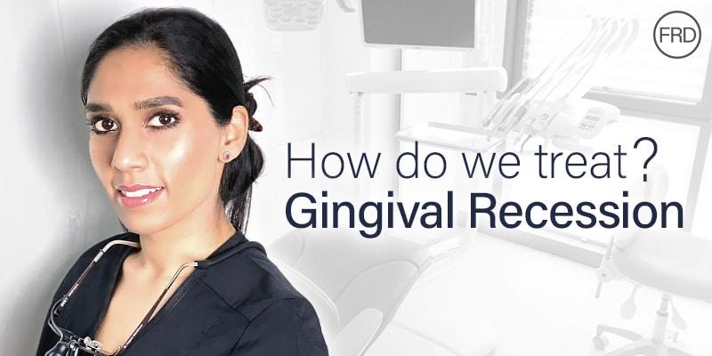 Treating Gingival Recession at Fulham Road Dental