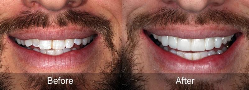 Composite Smile Makeover