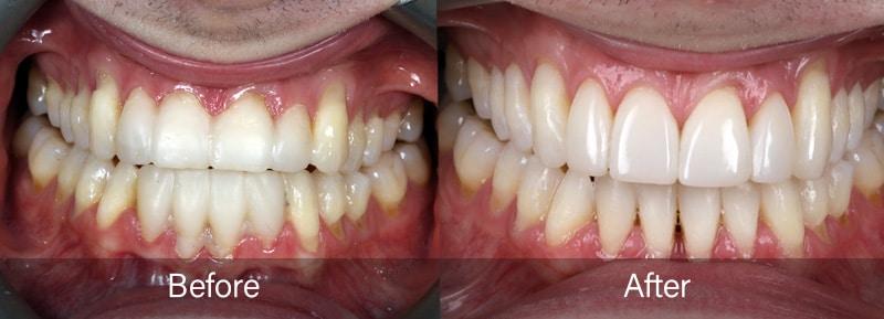 George the Dentist Composite Bonding